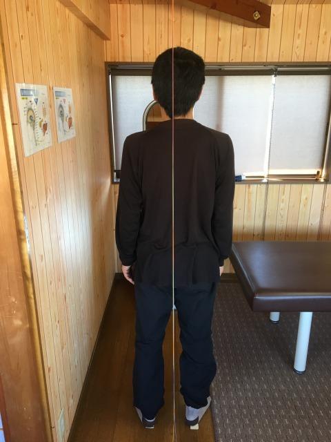 豊川市 50代男性 左肩が挙がらない50肩