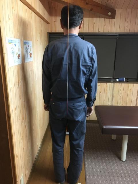 豊川市 男性 右足のふるえ