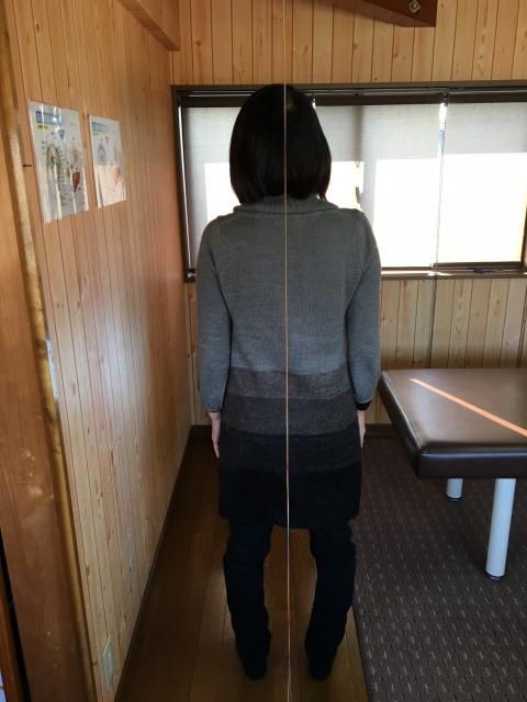 坐骨神経痛 豊川市 女性
