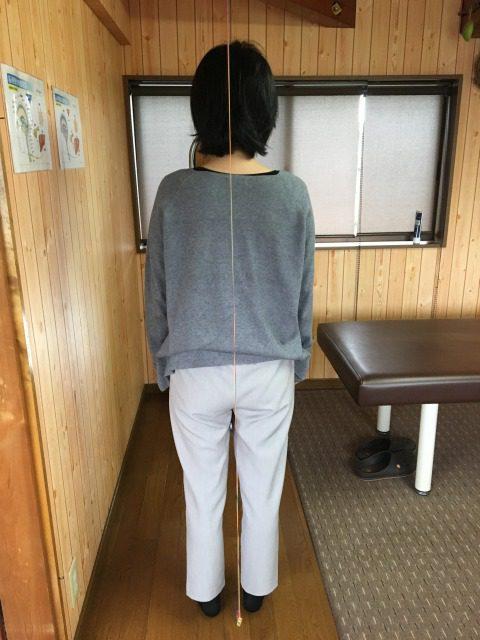豊川市 女性 首痛肩こり