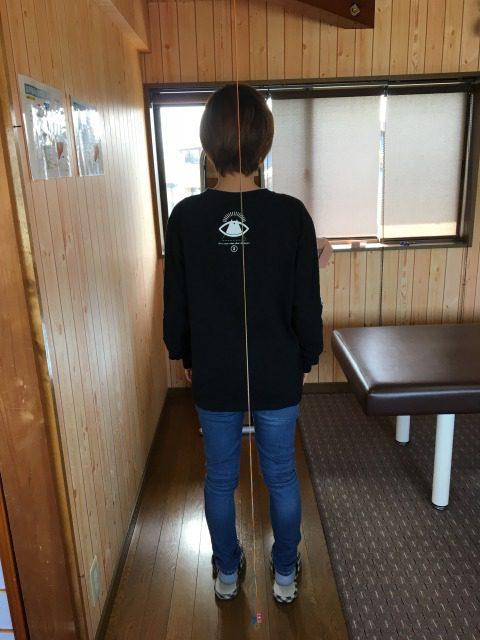 豊川市 お尻痛 女性2