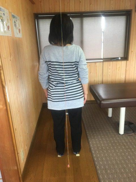 岡崎市 女性 股関節痛