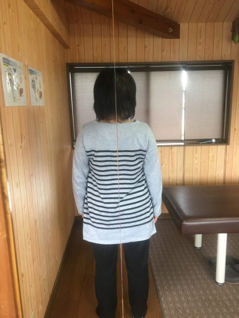 岡崎市 女性 股関節痛2