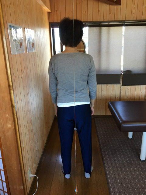 豊川市 女性 右股関節痛