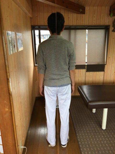 豊川市 男性 坐骨神経痛