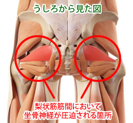 梨状筋と坐骨神経痛の関係