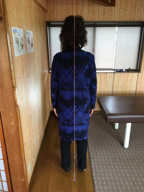 豊川市 右股関節(足付け根)痛 女性