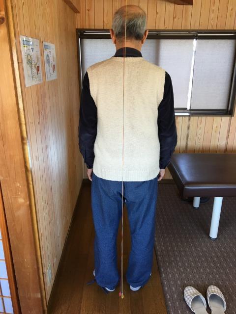 豊橋市 足痛み 70代男性