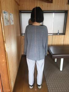 豊橋市 30代女性 首痛