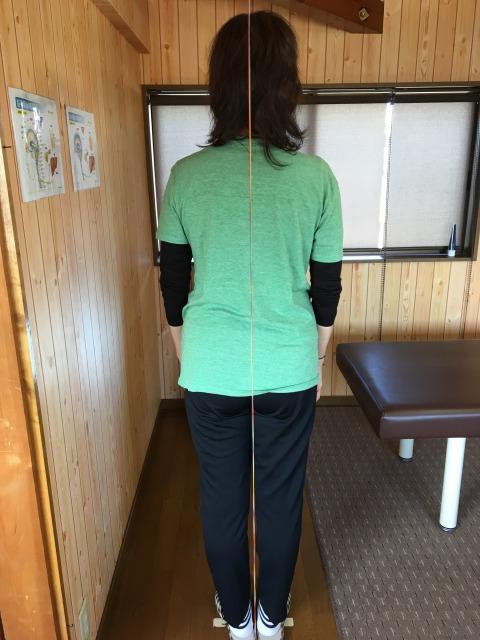 豊川市 女性 坐骨神経痛