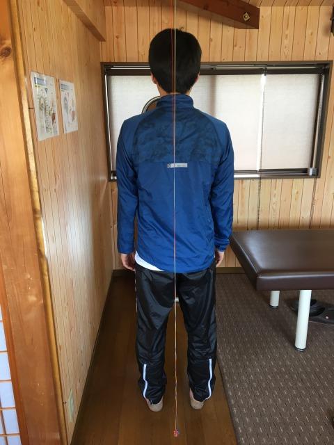 三重県四日市市 男性 坐骨神経痛