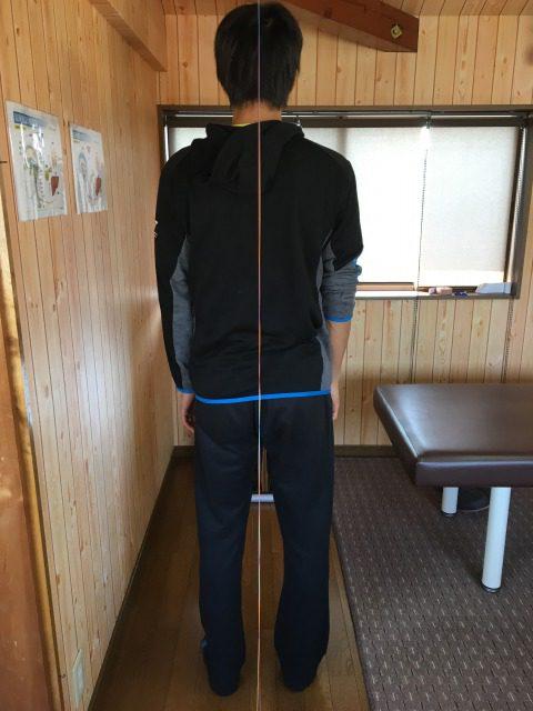 豊川市 左腰痛 男性