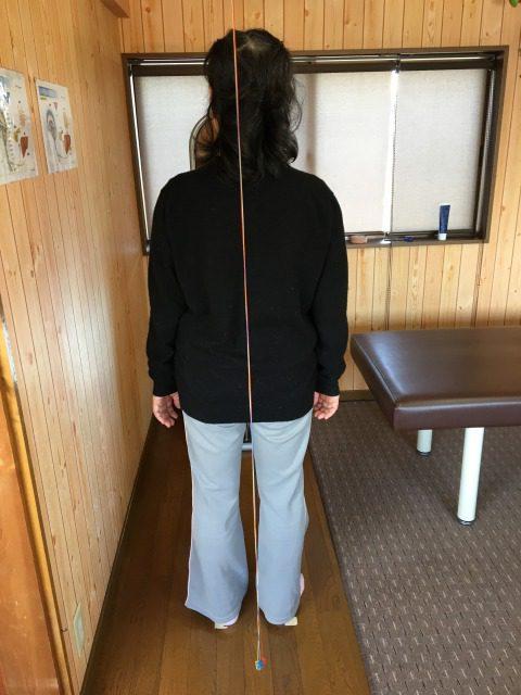 湖西市 左肩痛 女性
