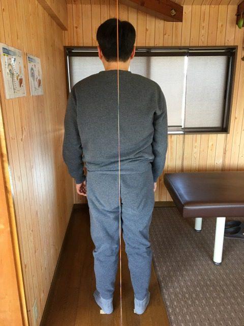 右背中の痛み 豊川市 男性