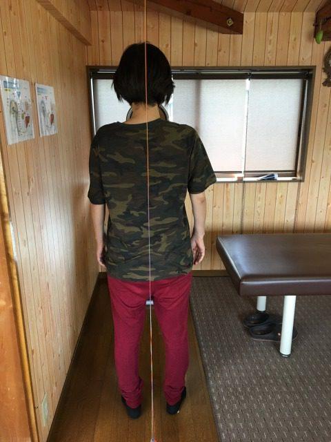 豊橋市 女性 右膝股関節痛