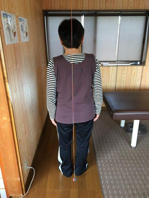左股関節痛 豊川市 女性