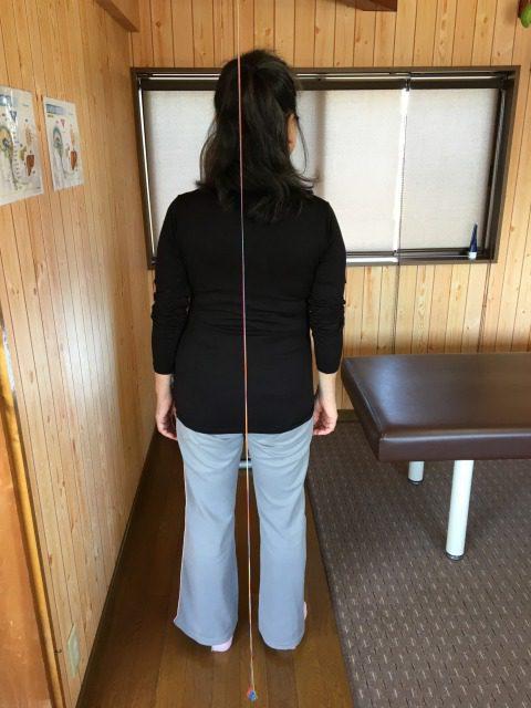 湖西市 女性 左肩痛