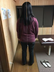 豊川市 女性 手のシビレ