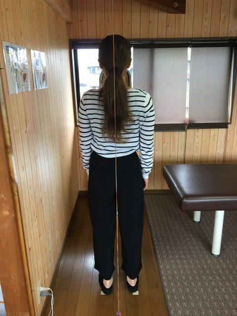豊川市 女性 腰痛2