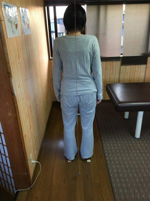 豊川市 女性 左腰痛