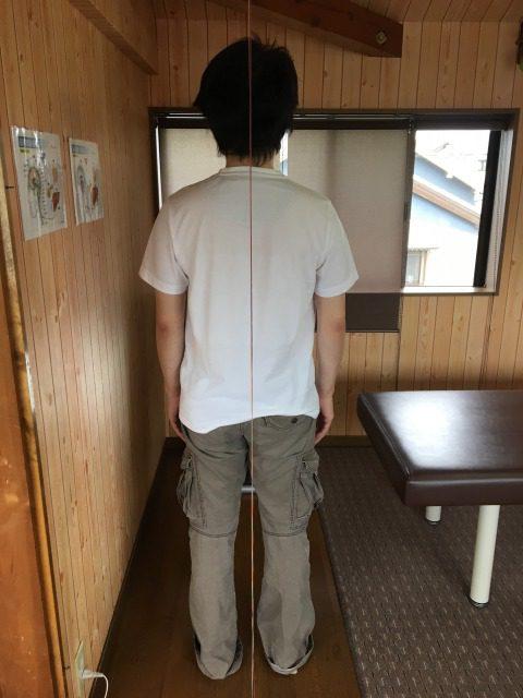 豊川市 背中痛 男性