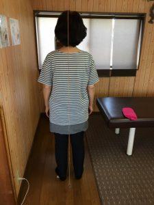 設楽町 女性 腰痛