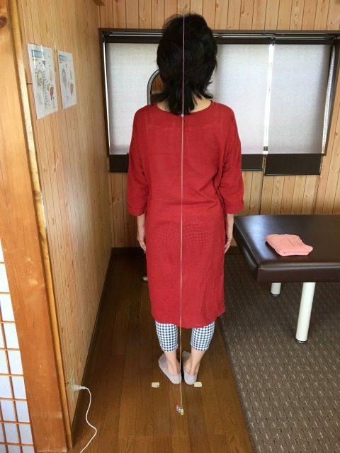 豊川市 女性 股関節痛
