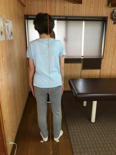 豊橋市 女性 股関節痛