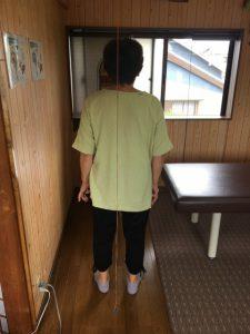 豊橋市 女性 左膝痛