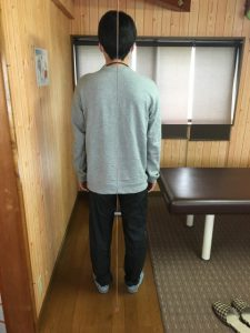 名古屋市 男性 坐骨神経痛